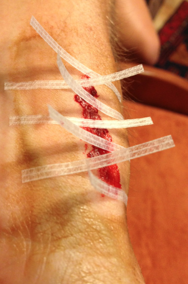 running_wound_care11