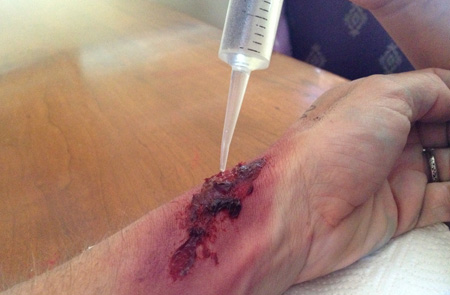 running_wound_care3