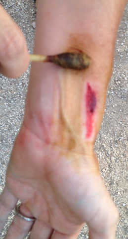 running_wound_care8